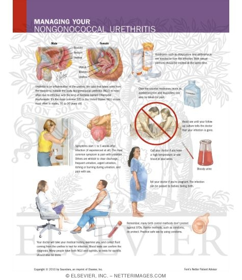 urethritis non gonococcal