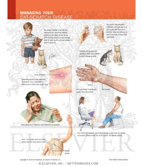 managing your cat-scratch disease, Skeleton