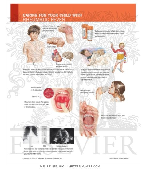 Illustration of Caring for Your Child with Rheumatic Fever from the Netter Collection