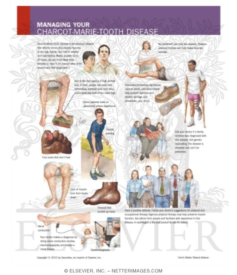 Managing Your Charcot-Marie Tooth Disease