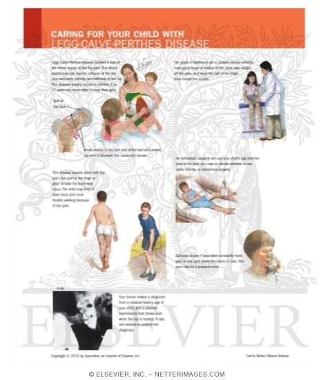 Illustration of Caring for Your Child With Legg-Calve-Perthes Disease from the Netter Collection