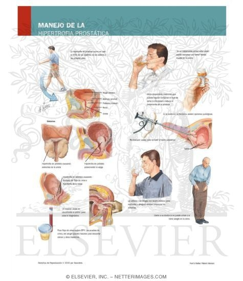 Managing Your Enlarged Prostate