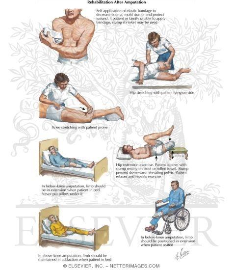 Rehabilitation After Amputation