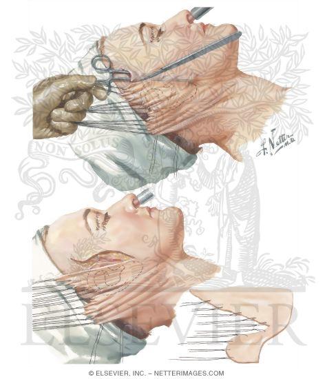 rhytidectomy face lift