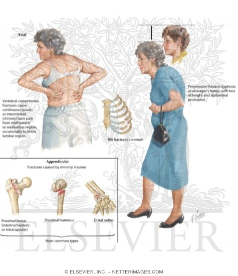 the clinical description of osteoporosis Job description: fracture liaison  the osteoporosis canada fracture liaison service (oc-fls)  review orthopaedic notes and other clinical notes confirm inclusion.