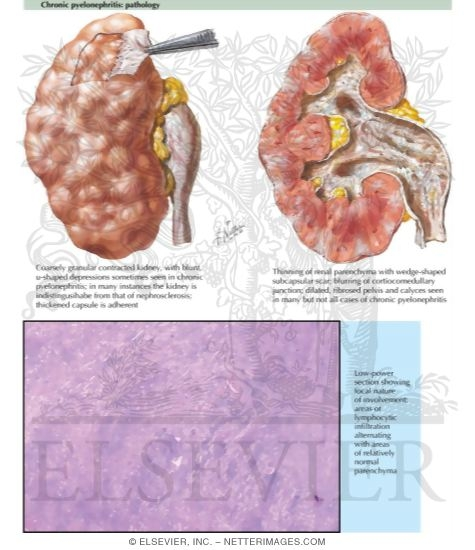 Pyelonephritis - Chronic Pyelonephritis: Pathology - Netter ...