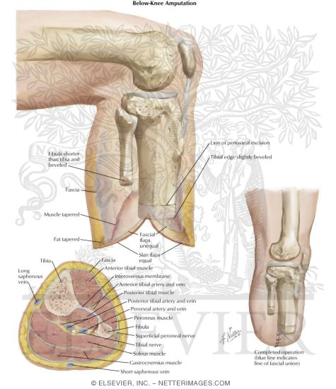 Below knee amputation anatomy