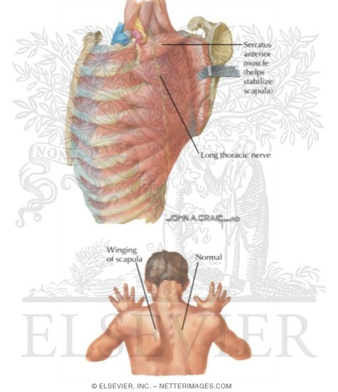 Neuropathy About Shoulder: Long Thoracic Nerve