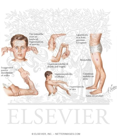 Illustration of Characteristics of Ehlers-Danlos Syndrome from the Netter Collection