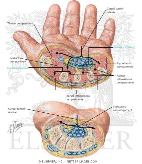 section through metacarpal bones - section through distal carpal bones, Human body