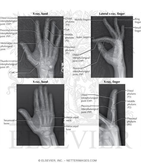 Radiology of the Hand