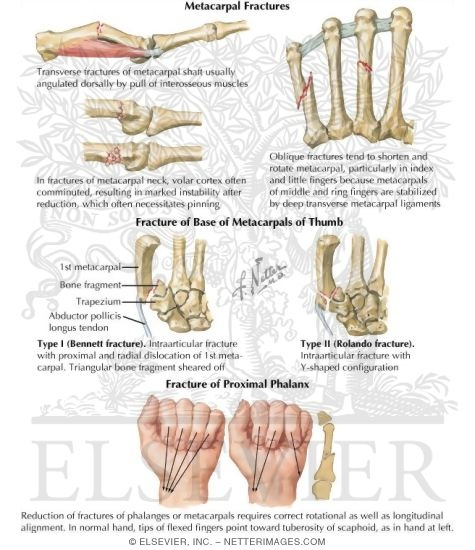 Netters Concise Orthopaedic Anatomy