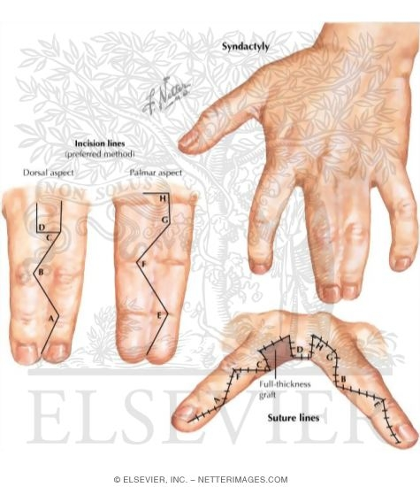 Pediatric Disorders of the Hand