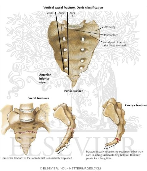 Trauma of the Pelvis