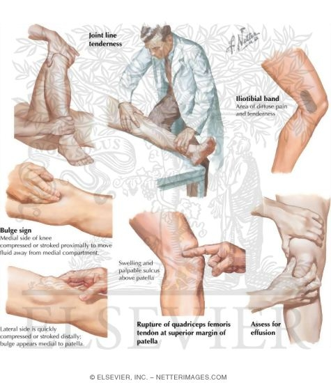 Netters concise orthopaedic anatomy physical examination of the leg and knee ccuart Choice Image