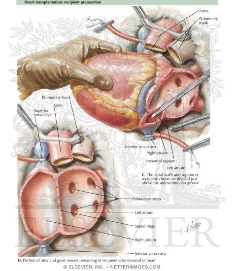 Transplantation recipient preparation heart transplantation recipient preparation ccuart Choice Image