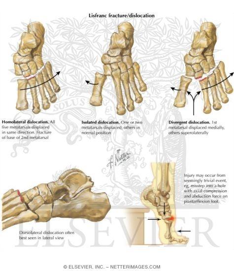 Injury To Tarsometatarsal Lisfranc Joint Complex