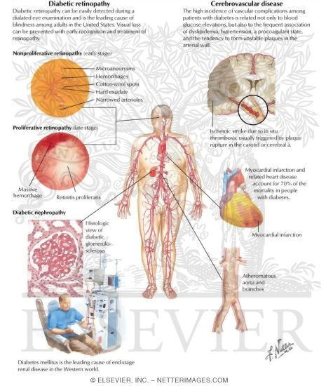 Diabetes Mellitus and Its Complications: Micro and Macrovascular Complications