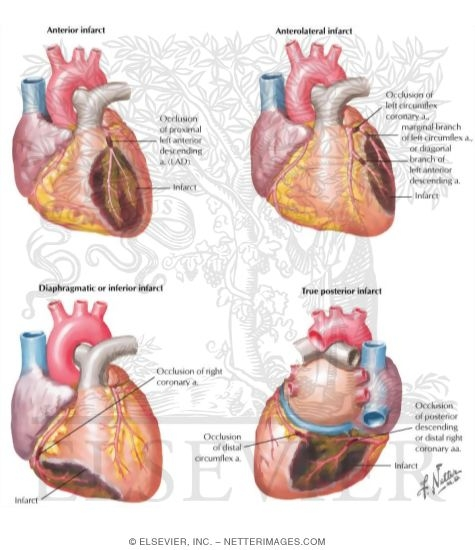 the definition and causes of a myocardial infraction When the left anterior descending branch of the left coronary artery is blocked an anterior myocardial infarction causes of anterior mi as well as in any part of.
