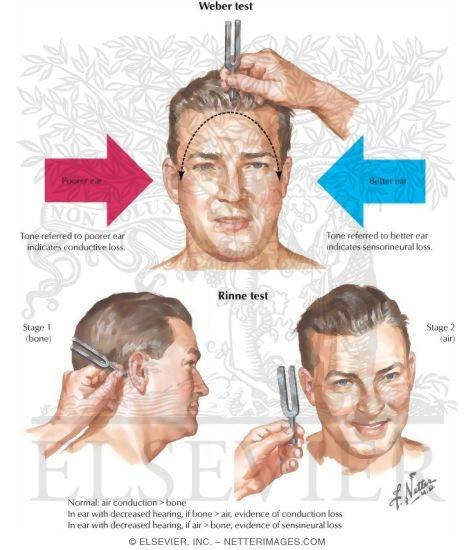 auditory nerve testing: weber and rinne testing, Skeleton