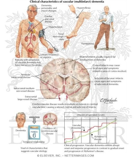 a clinical description of the irreversible brain disease alzheimers disease Definition alzheimer's disease (ad) is an age-related, non-reversible brain  disorder that develops over a period of years initially  it is the most common  cause of dementia among people age 65 and older  clinical trials.