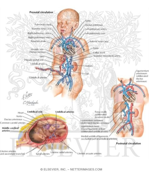 Fetal Circulation Pattern And Changes At Birth