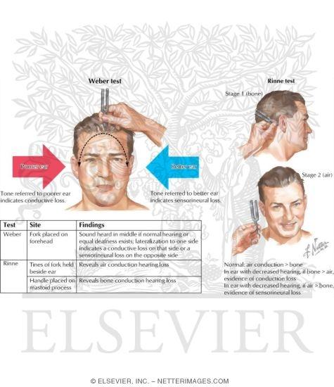 nerve testing: weber and rinne testing, Skeleton