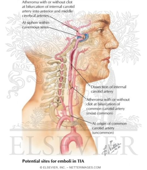 Carotid t Occlusion or Occlusion of Carotid