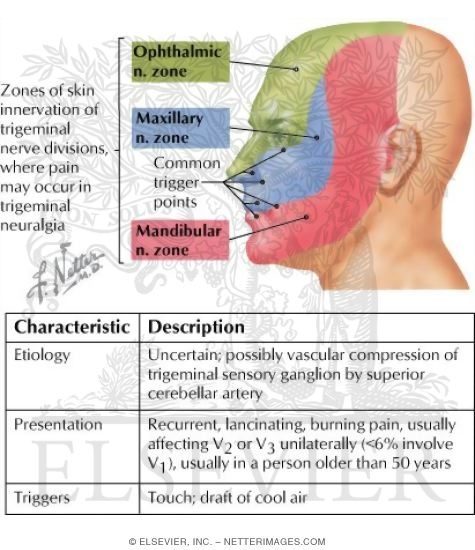 trigeminal neuralgia thesis Trigeminal neuralgia (tn), also called tic douloureux, is a chronic pain condition that causes extreme, sporadic, sudden burning or shock-like face pain.