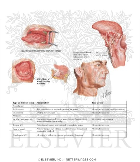 Anatomy of Oral Cavity PDF http://www.netterimages.com/image/40397.htm