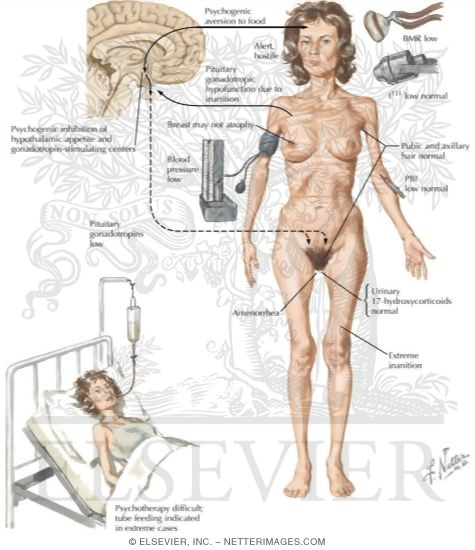 identifying the signs and treatment of anorexia nervosa Anorexia nervosa is an eating disorder and psychological condition marked by extreme self-starvation due to a distorted body imagepeople with anorexia think they are fat, regardless of how much.