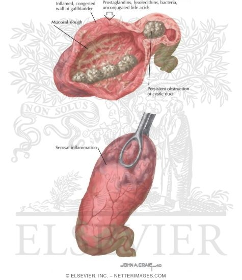 acute calculous cholecystitis, Skeleton