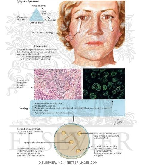 Viral Infection Link To Sjogren S Syndrome