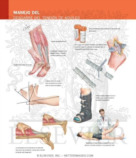 Illustration of Managing Your Achilles Tendon Rupture from the Netter Collection