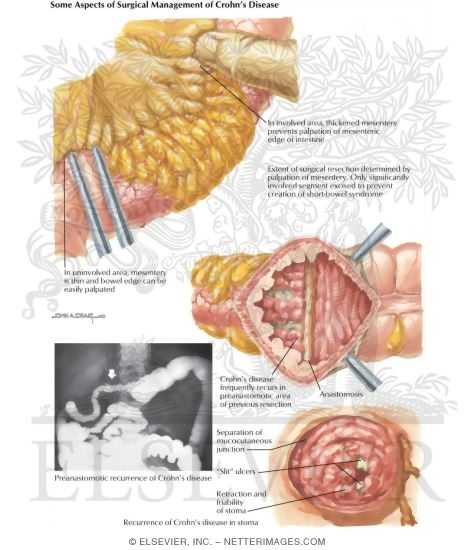 an introduction to crohns disease an inflammatory bowel disease Crohn's disease is a type of inflammatory bowel disease (ibd) as the name implies, ibds are characterised by chronic intestinal inflammation (swelling due to cellular processes) the other major ibd is ulcerative colitis.