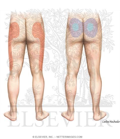 Sacroiliac Joint Pain Referral Patterns Unlabeled Orthopaedics Carlos A G Machado 50456