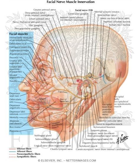Facial nerve intervation