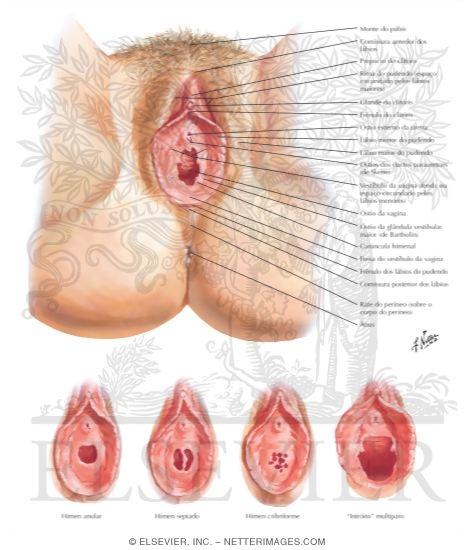 vulvar cancer photos #10