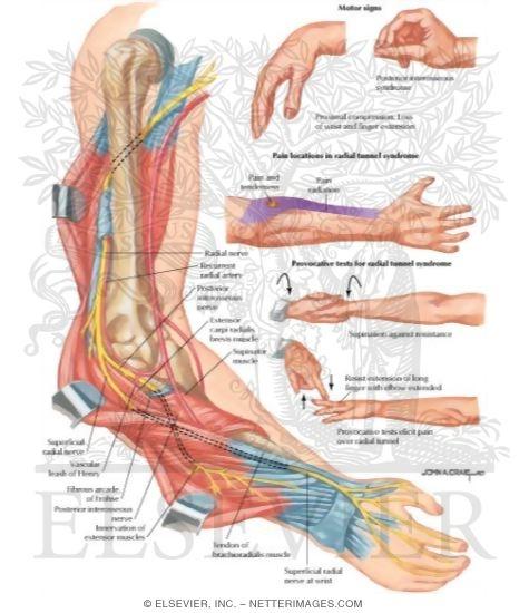 Radial Nerve Compression