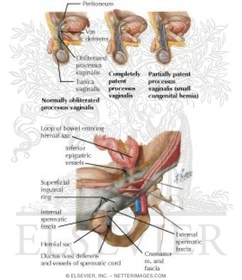 Abdominal Wall Inguinal Hernia