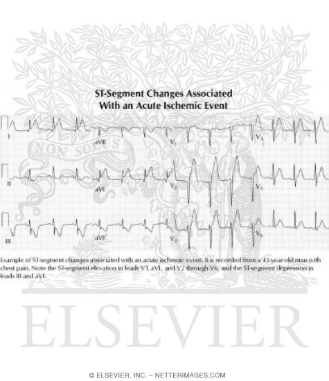 ST-Segment Changes Associated With an Acute Ischemic Event