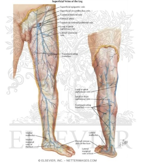 Venous Disorders Of Lower Extremity