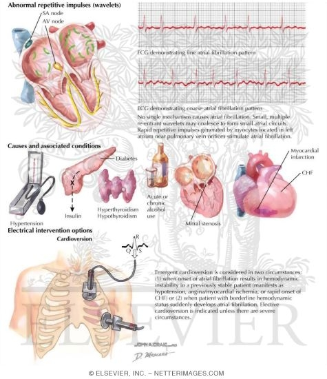 Illustration of Atrial Fibrillation from the Netter Collection