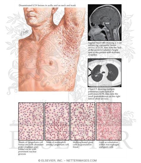 Benign cephalic histiocytosis (infantile papular self-healing ...