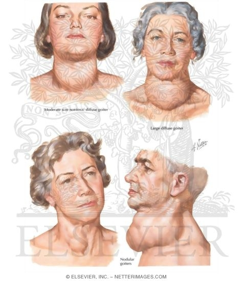 Euthyroid Goiter