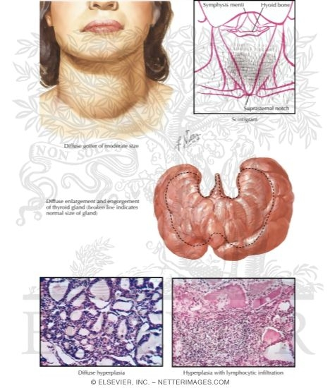 Thyroid Pathology in Graves Disease