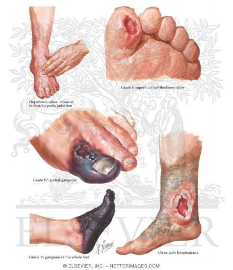 Vascular Insufficiency In Diabetes Complications Of