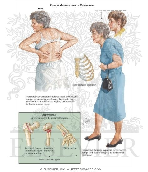 the clinical description of osteoporosis The acp clinical guidelines committee based these recommendations on a   the international reference standard for the description of osteoporosis in.