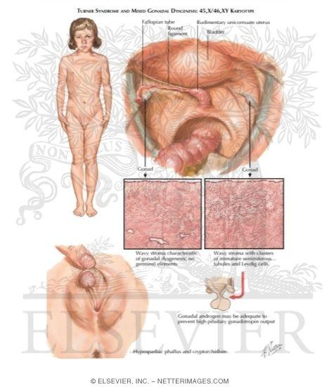 Turner Syndrome Gonadal Dysgenesis