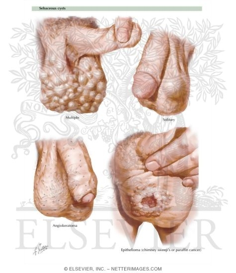 Cysts and Cancer of the Scrotum